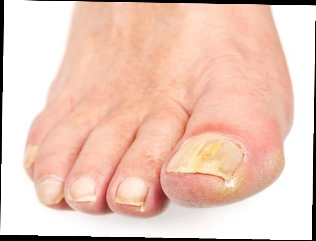 Средство против грибка ногтей на ногах в домашних